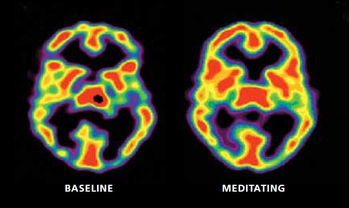 Fuente: Dr. Michael Baime. This is your brain on mindfulness http://www.nmr.mgh.harvard.edu/~britta/SUN_July11_Baime.pdf